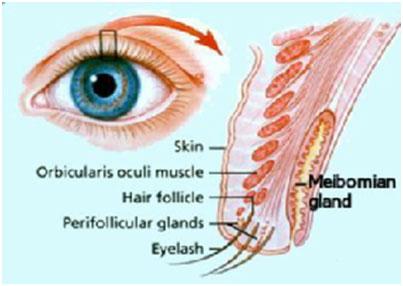 Tarsal Gland Cyst